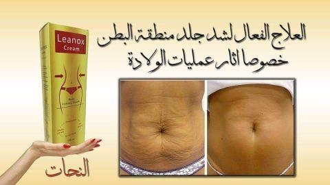 كريم لينوكس لحرق الدهون المتراكمه في الجسم